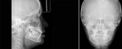CEFH (Radiografia del Cranio e dei seni nasali)